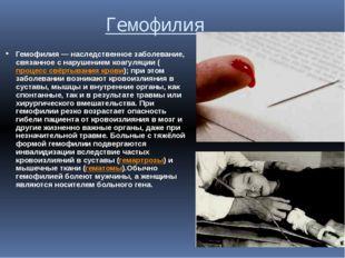 Гемофилия Гемофилия — наследственное заболевание, связанное с нарушением коаг