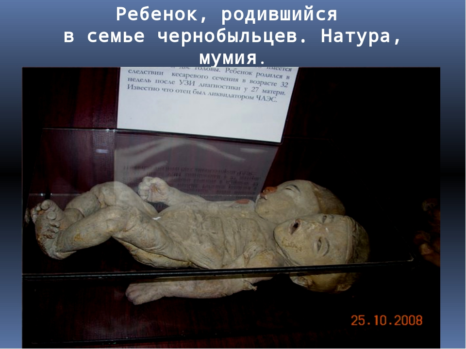 Ребенок, родившийся в семье чернобыльцев. Натура, мумия.