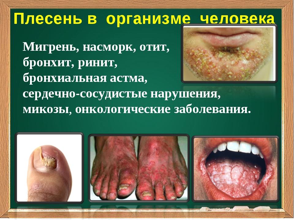 Плесень в организме человека Мигрень, насморк, отит, бронхит, ринит, бронхиал...