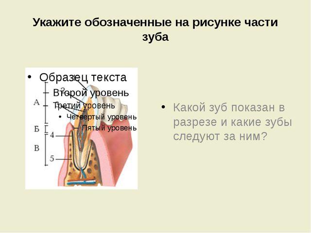 Укажите обозначенные на рисунке части зуба Какой зуб показан в разрезе и каки...