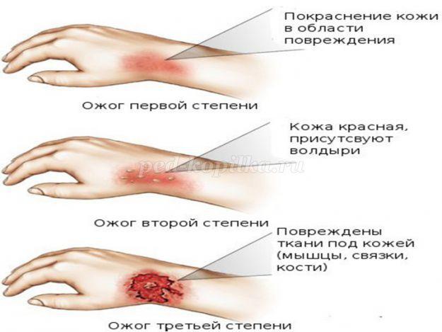 http://ped-kopilka.ru/upload/blogs/13833_fdff43523fe80449d1b27d5a1dbfd837.jpg.jpg