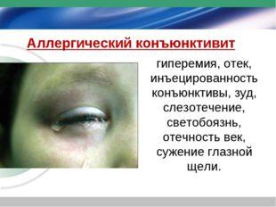 Аллергический конъюнктивит гиперемия, отек, инъецированность конъюнктивы, зуд