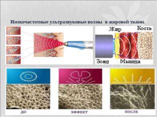 Низкочастотные ультразвуковые волны в жировой ткани.