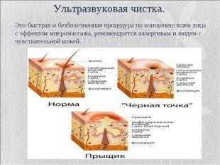 Это быстрая и безболезненная процедура по очищению кожи лица с эффектом микро
