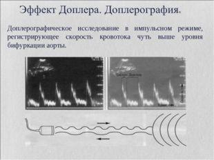 Доплерографическое исследование в импульсном режиме, регистрирующее скорость