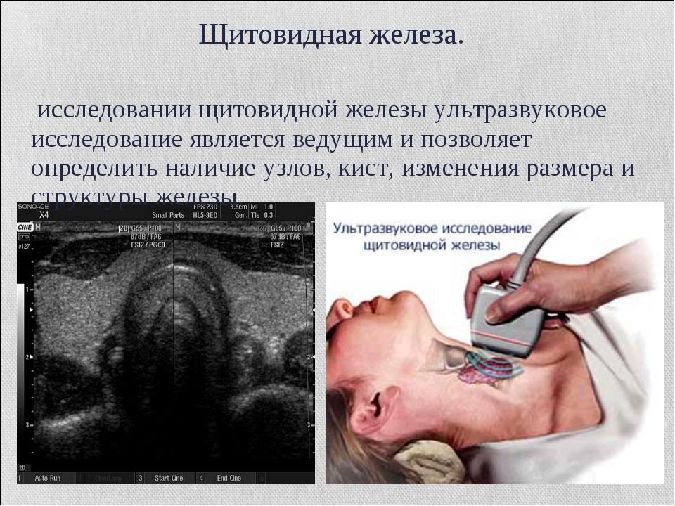 Щитовидная железа. В исследовании щитовидной железы ультразвуковое исследован...