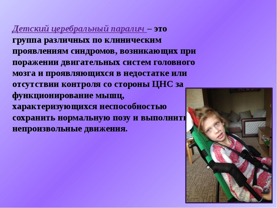 Детский церебральный паралич – это группа различных по клиническим проявления...