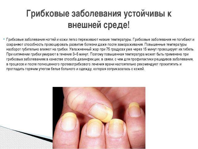 Грибковые заболевания ногтей и кожи легко переживают низкие температуры. Гриб...