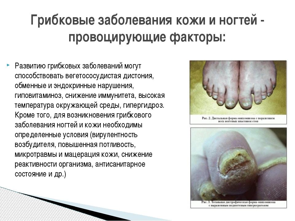 Развитию грибковых заболеваний могут способствовать вегетососудистая дистония...