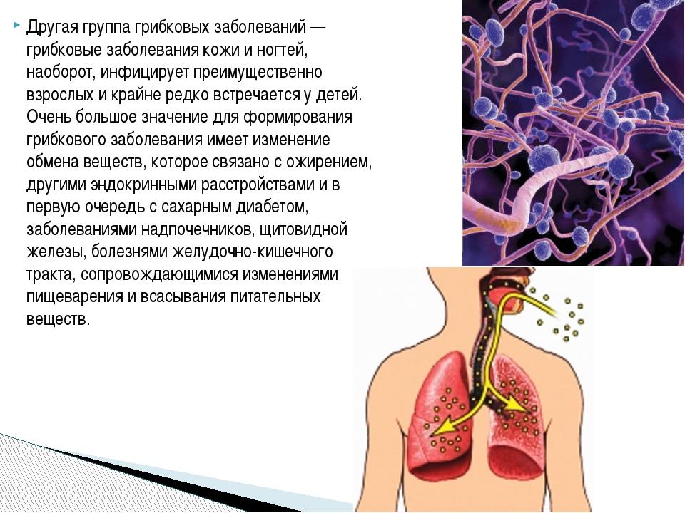 Другая группа грибковых заболеваний — грибковые заболевания кожи и ногтей, на...
