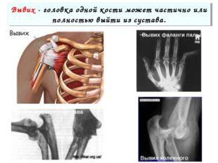Вывих - головка одной кости может частично или полностью выйти из сустава. Вы