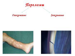 Открытые Рана вызвана травмирующим фактором или костным обломком, сопровождае