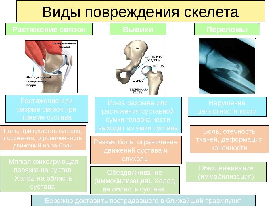 Виды повреждения скелета Растяжение связок Вывихи Переломы Боль, отечность тк...