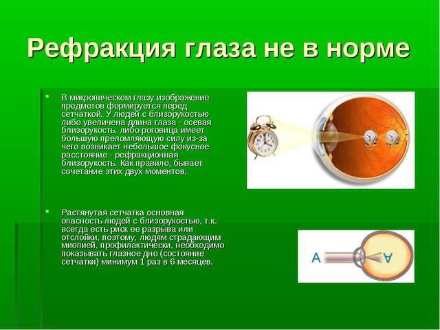 Рефракция глаза не в норме В микропическом глазу изображение предметов формир...