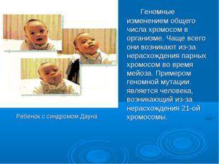 Ребенок с синдромом Дауна Геномные изменением общего числа хромосом в орга