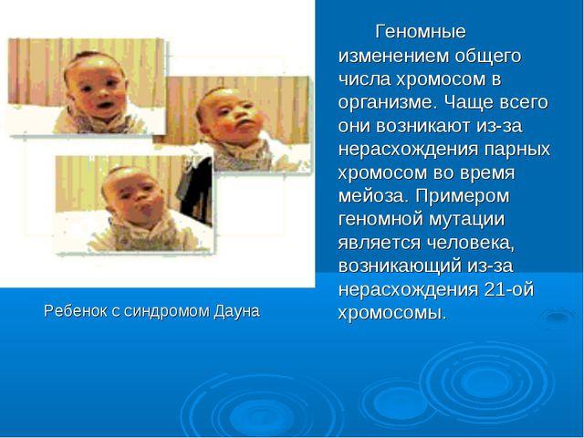 Ребенок с синдромом Дауна Геномные изменением общего числа хромосом в орга...