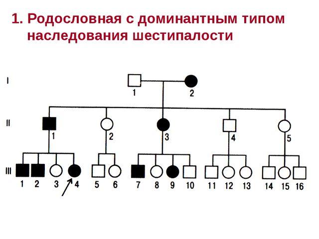 1. Родословная с доминантным типом наследования шестипалости