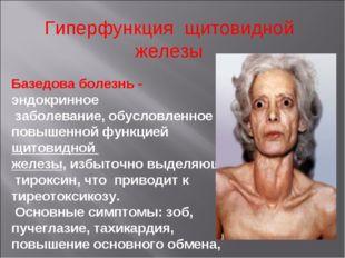 Гиперфункция щитовидной железы Базедова болезнь - эндокринное заболевание, об