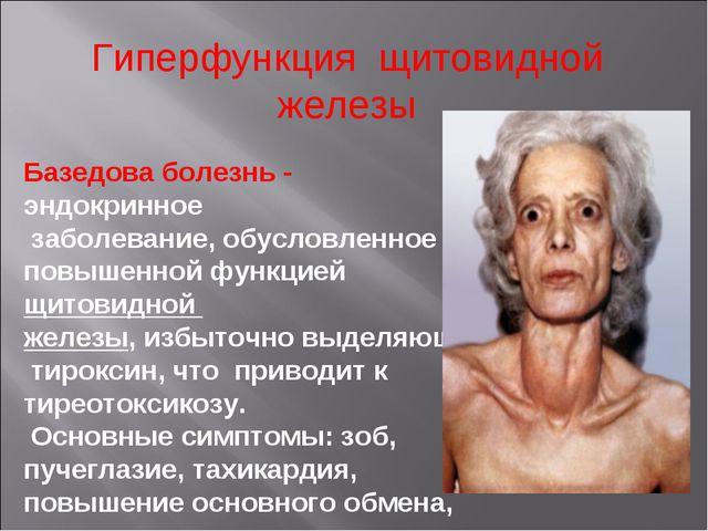 Гиперфункция щитовидной железы Базедова болезнь - эндокринное заболевание, об...