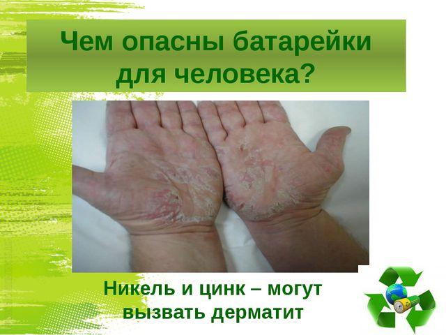 Чем опасны батарейки для человека? Никель и цинк – могут вызвать дерматит