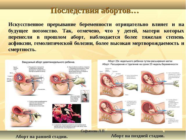 Сафьянова Л.П. Последствия абортов… Искусственное прерывание беременности отр...