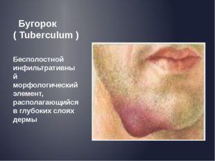 Бугорок ( Tuberculum ) Бесполостной инфильтративный морфологический элемент,