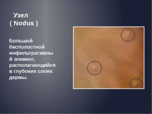 Узел ( Nodus ) Большой бесполостной инфильтративный элемент, располагающийся