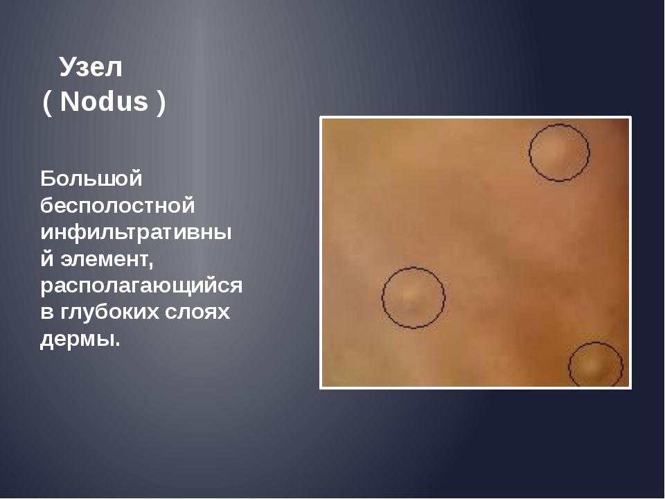 Узел ( Nodus ) Большой бесполостной инфильтративный элемент, располагающийся...