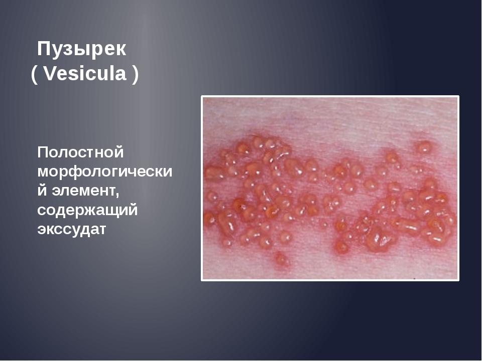 Пузырек ( Vesicula ) Полостной морфологический элемент, содержащий экссудат