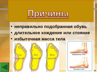 неправильно подобранная обувь длительное хождение или стояние избыточная масс