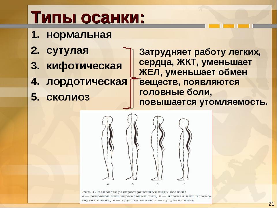 Типы осанки: нормальная сутулая кифотическая лордотическая сколиоз Затрудняе...