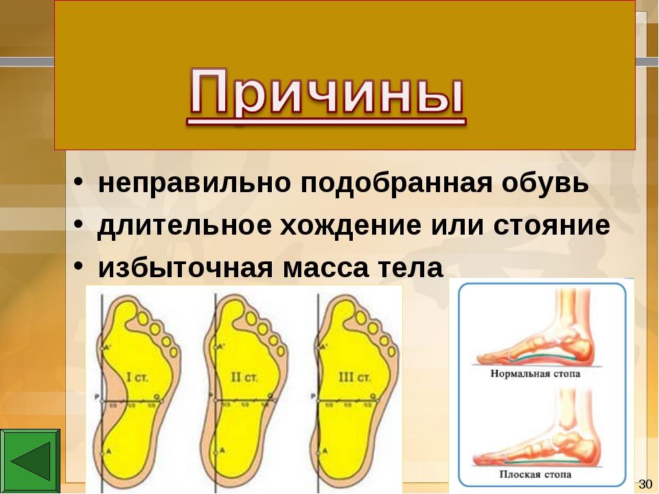 неправильно подобранная обувь длительное хождение или стояние избыточная масс...