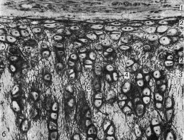 Рис. 7. Хрящи. б - эластический; 1 - надхрящница; 2, 4 - хондроциты; 3 - межклеточное вещество; 5 - пучки коллагеновых волокон; 6 - эластические волокна