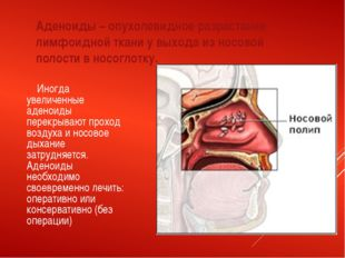 Аденоиды – опухолевидное разрастание лимфоидной ткани у выхода из носовой пол