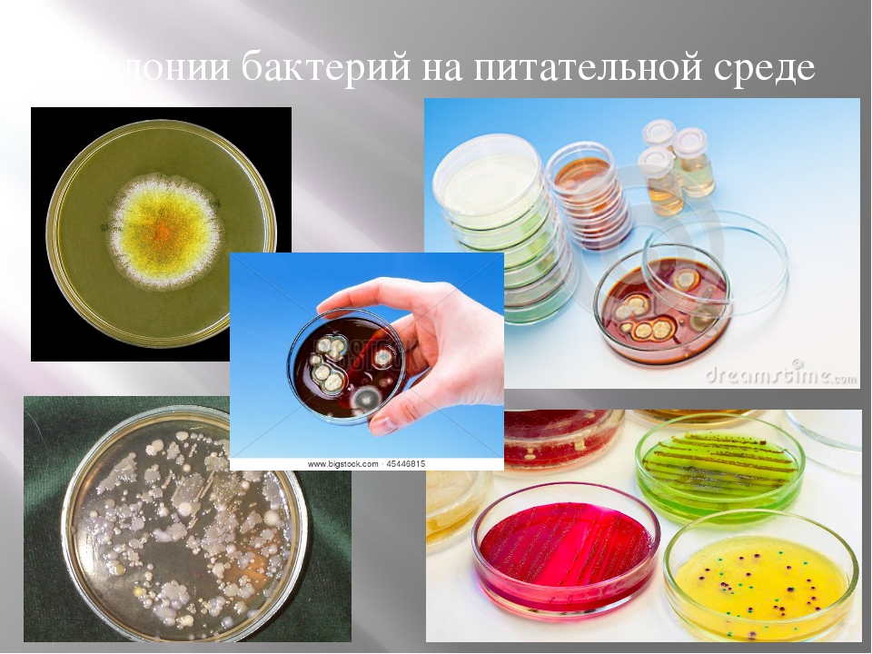 Колонии бактерий на питательной среде