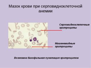 Мазок крови при серповидноклеточной анемии Серповидноклеточные эритроциты Миш