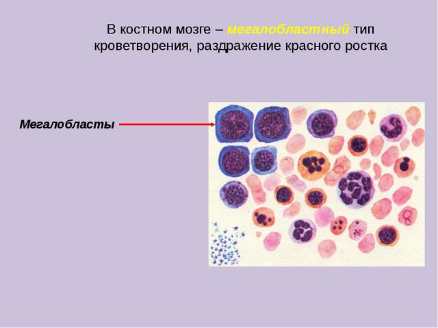 В костном мозге – мегалобластный тип кроветворения, раздражение красного рост...