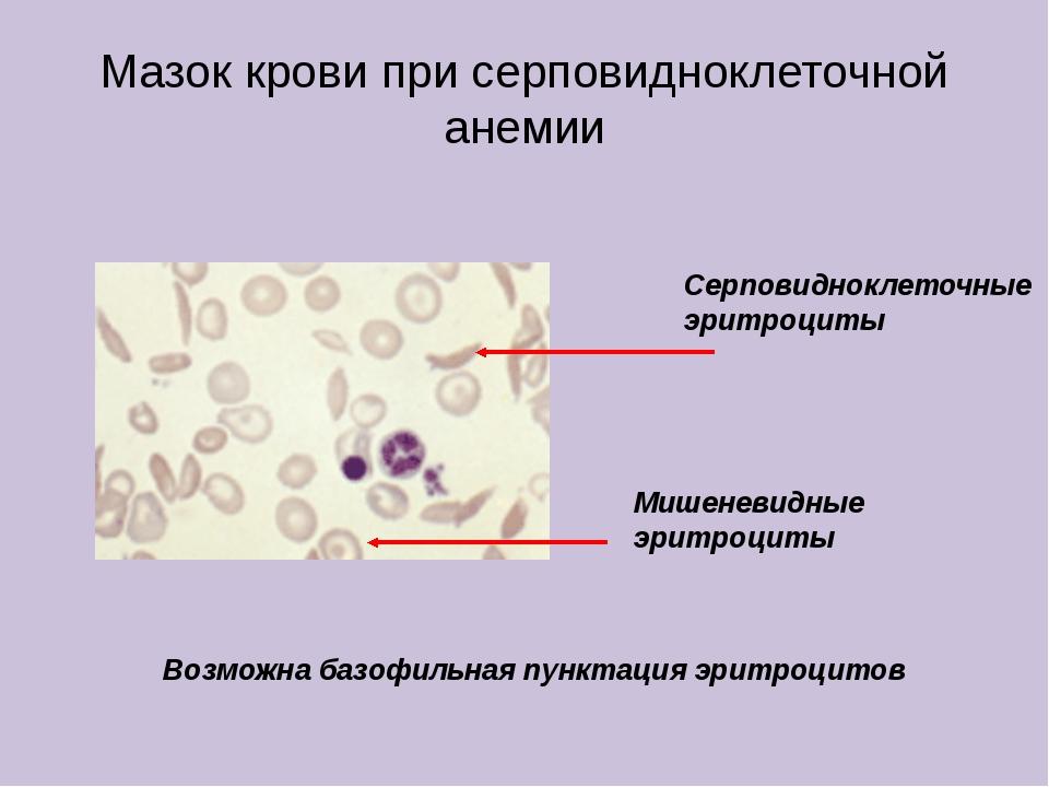 Мазок крови при серповидноклеточной анемии Серповидноклеточные эритроциты Миш...
