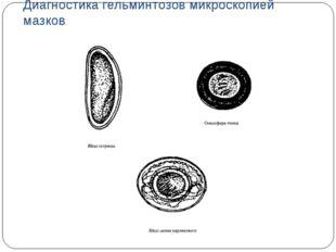 Диагностика гельминтозов микроскопией мазков