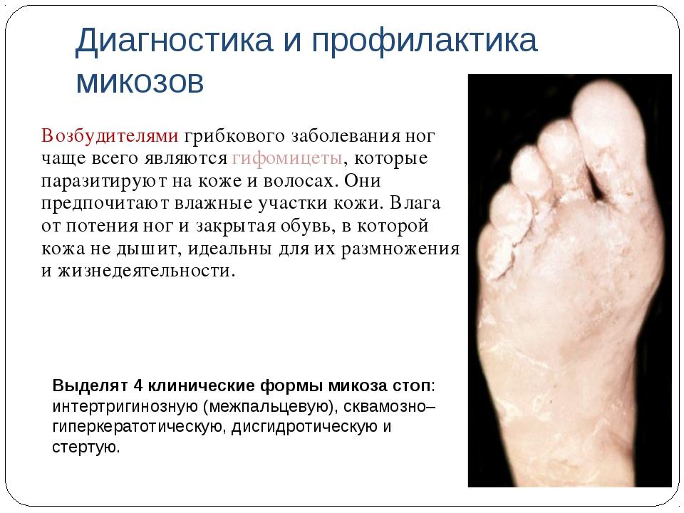 Диагностика и профилактика микозов Возбудителями грибкового заболевания ног ч...