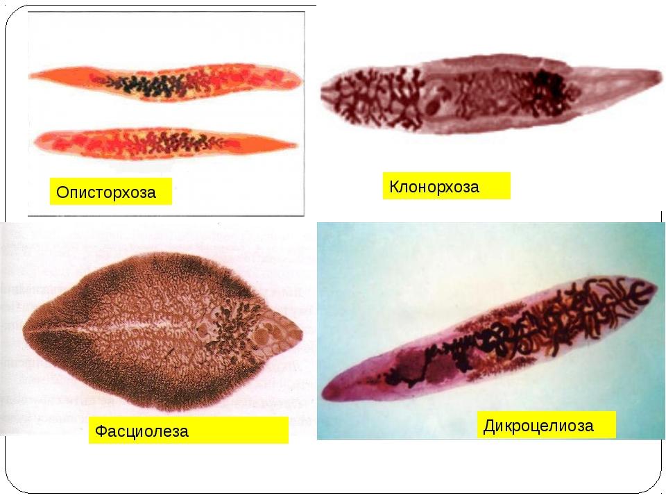 Описторхоза Клонорхоза Фасциолеза Дикроцелиоза