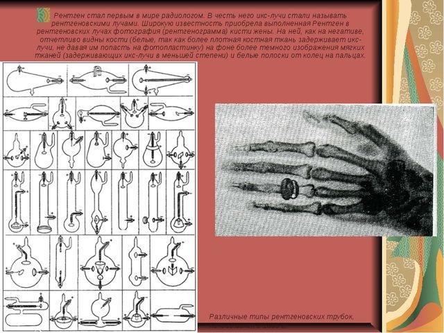 Рентген стал первым в мире радиологом. В честь него икс-лучи стали называть р...