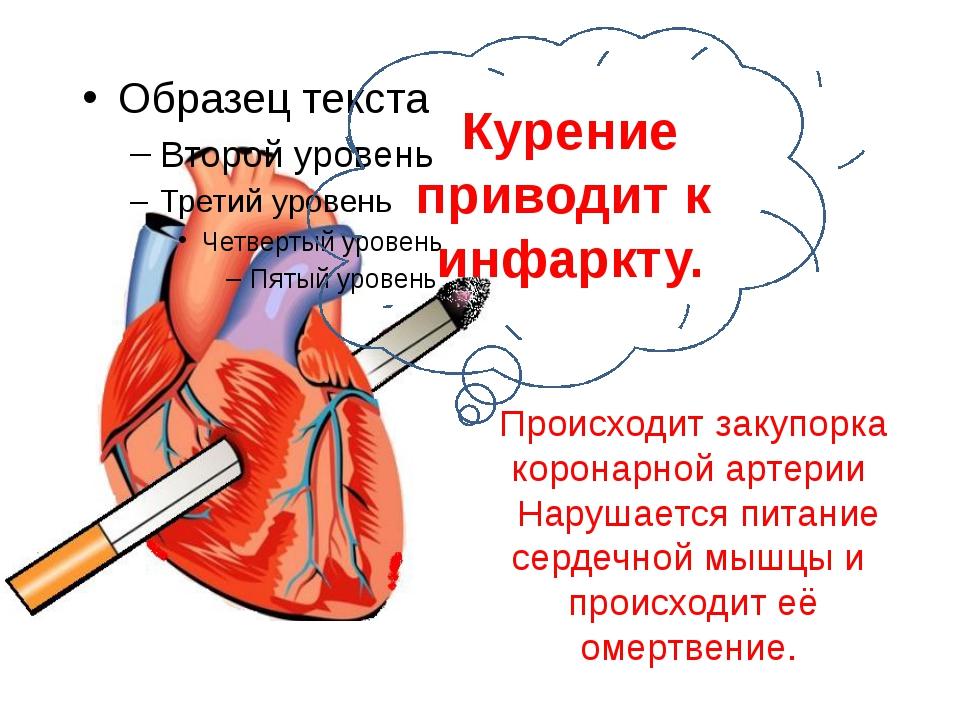 Происходит закупорка коронарной артерии Нарушается питание сердечной мышцы и...