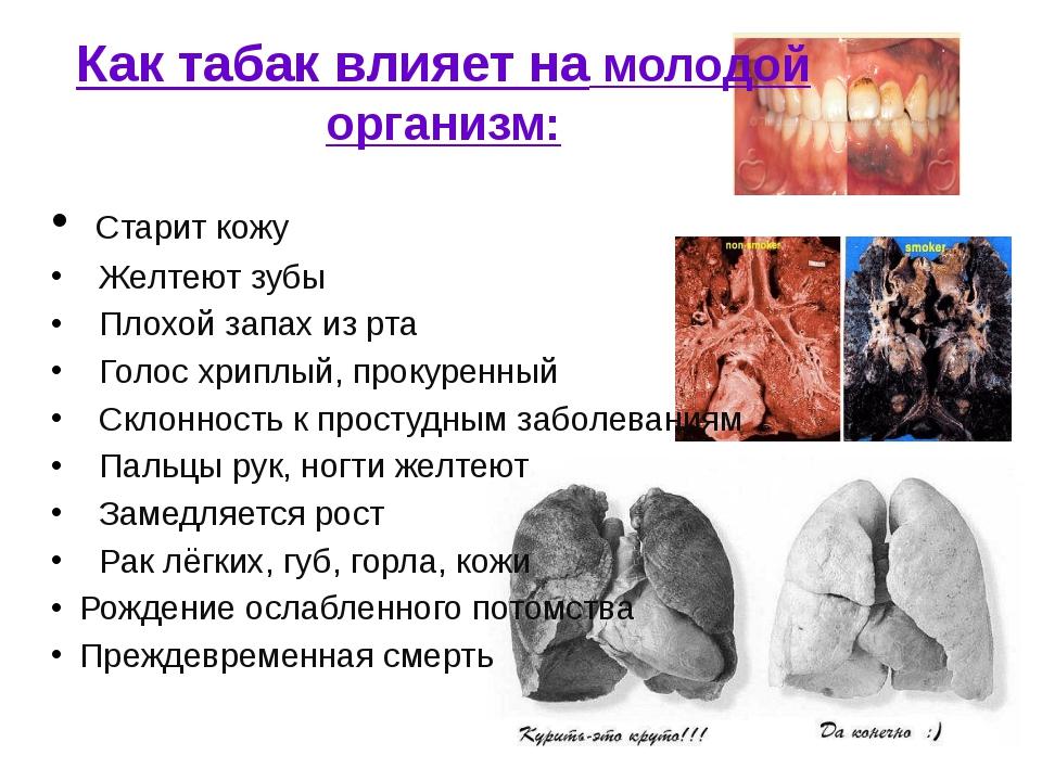 Как табак влияет на молодой организм: Старит кожу Желтеют зубы Плохой запах и...
