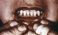 Scorbutic gums.jpg
