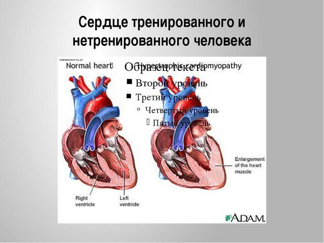 Сердце тренированного и нетренированного человека