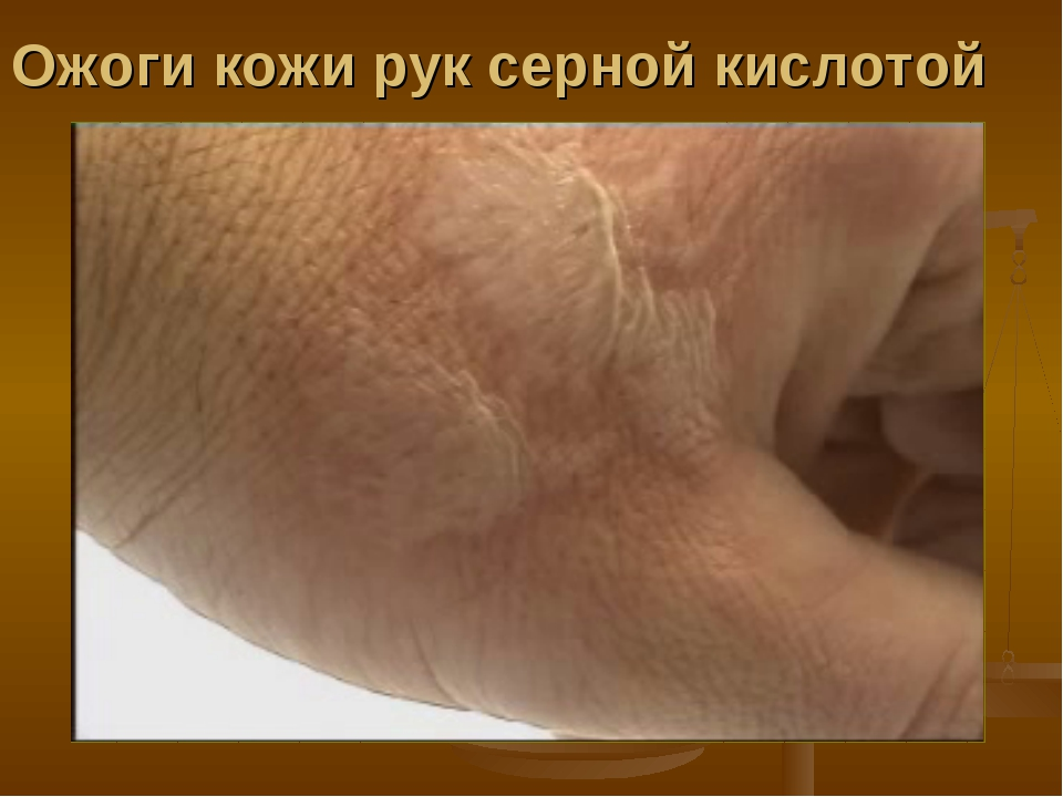 шерстяные термоноски ожог руки при беременности как снять боль свойства белья сочетание