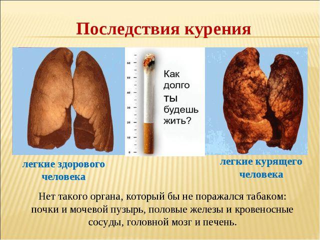 Последствия курения Нет такого органа, который бы не поражался табаком: почки...