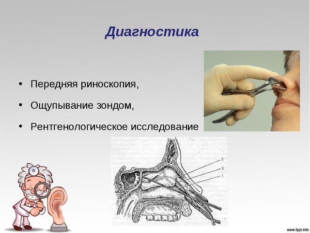 Диагностика Передняя риноскопия, Ощупывание зондом, Рентгенологическое исслед...
