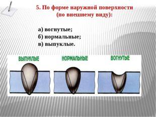 5. По форме наружной поверхности (по внешнему виду): а) вогнутые; б) нормальн